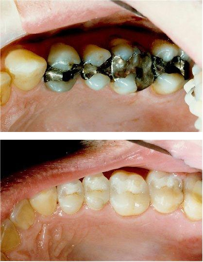 Silver white 20fillings2